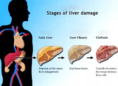 why are men more prone to developing liver cancer? | modern cancer, Human Body
