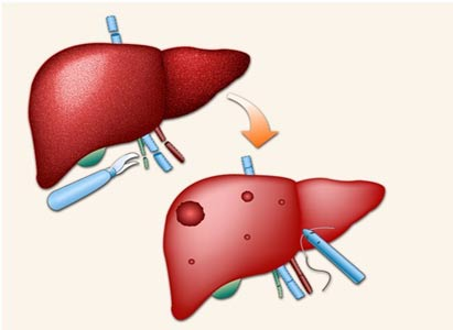 Japan Get Important Clues by Analyzing Liver Cancer with the Help of Super Computer