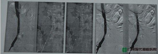 cervical cancer, lower limb vein thrombosis, Modern Cancer Hospital Guangzhou