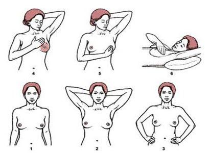 kanker payudara, prevention kanker payudara