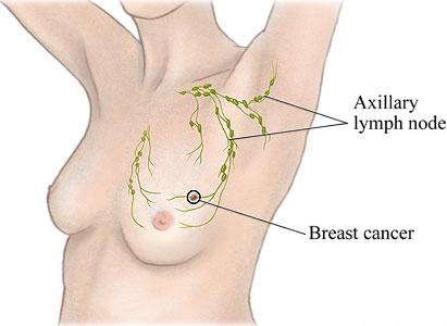 乳腺癌的治疗