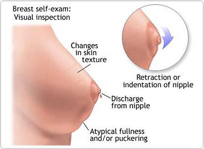 Kanser payudara , gejala kanser payudara