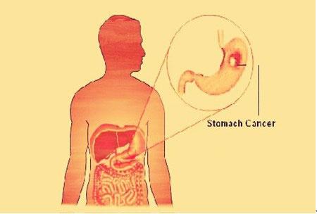 Kanker lambung, diagnosis kanker lambung, Modern Cancer Hospital Guangzhou, gastroskopi