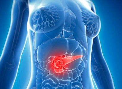 Kanker pankreas, pengobatan, Modern Cancer Hospital Guangzhou, metode minimal invasif