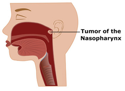 nasopharyngeal cancer, nasopharyngeal cancer treatment, Modern Cancer Hospital Guangzhou