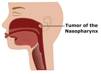 鼻咽癌治疗