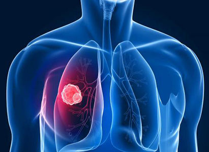 Lung cancer,Lung cancer causes,Lung cancer symptoms,Lung cancer treatment method