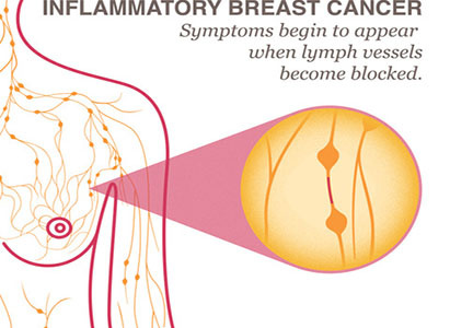 Breast cancer, breast cancer symptoms