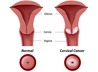 Cervical cancer,Symptoms of cervical cancer,Treatment methods of cervical cancer