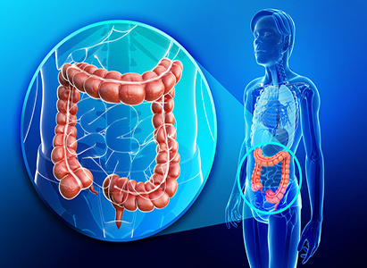 Colon cancer,Symptoms of colon cancer, causes of colon cancer