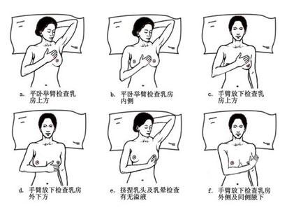 广州现代肿瘤医院,广州现代医院乳腺癌临床防治中心,乳腺癌,治愈早期乳腺癌,微创,乳腺再造,MDT团队