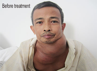 DEDI: Interventional therapy helps me to fight against Hodgkin's lymphoma