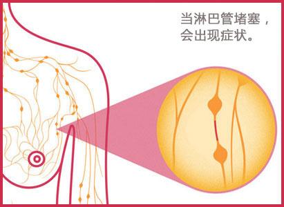 炎性乳腺癌,乳腺癌治疗,广州现代肿瘤医院
