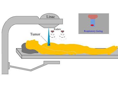 xạ trị, bệnh viện Ung Thư St. Stamford Quảng Châu, điều trị ung thư