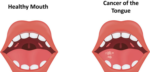 Tongue Cancer,tongue cancer symptoms