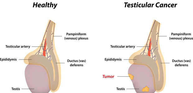 Testicular Cancer, testicular cancer symptoms, testicular cancer diagnosis, testicular cancer treatment