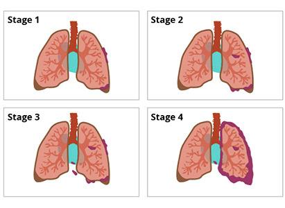 ung thư phổi, giai đoạn ung thư phổi, điều trị ung thư phổi, bệnh viện Ung Thư St. Stamford Quảng Châu