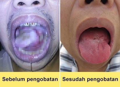 Minimal Invasif Mengobati Kanker Lidah, Tanpa Pemotongan ...