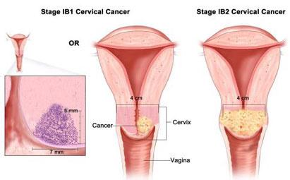 Gejala Kanker Serviks,Proses Pap Smear,Pengobatan Minimal Invasif tanpa operasi
