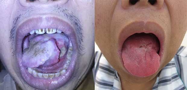 tongue cancer, tongue cancer treatment, interventional therapy, natural therapy, minimally invasive treatment, St. Stamford Modern Cancer Hospital Guangzhou