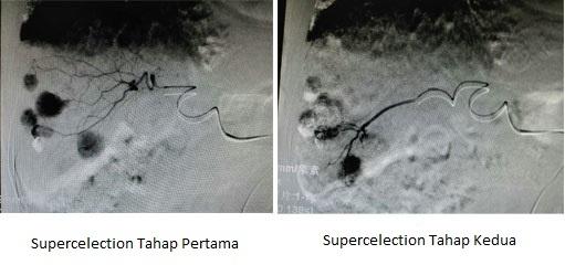 Intervensi, St. Stamford Modern Cancer Hospital Guangzhou, Microcatheter Superselection, Pengobatan Akurat, Kanker Hati, Pengobatan Minimal Invasif