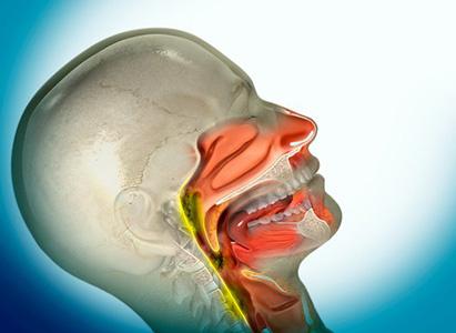 Kanker Nasofaring, Pengobatan Kanker Nasofaring, Metode Gabungan Pengobatan Timur dan Barat, Metode Minimal Invasif, Kemoterapi, Operasi