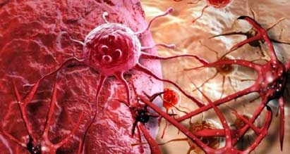 St.Stamford Modern Cancer Hospital Guangzhou terdapat 18 Metode Terapi Minimal Invasif