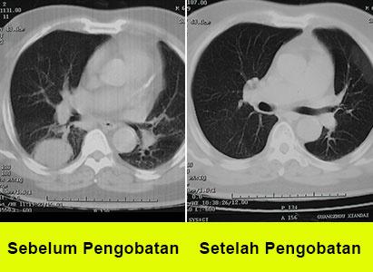 kanker paru, pengobatan kanker paru, pengobatan teknologi minimal invasif, St. Stamford Modern Cancer Hospital Guangzhou, Intervensi, Cryosurgery, Terapi Natural, Penanaman Biji Partikel, Metode Gabungan Pengobatan Timur dan Barat.