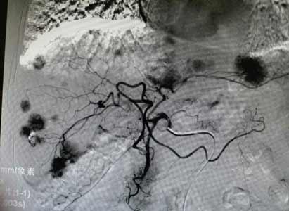 介入新高度:微管超选精准杀灭每一个肿瘤