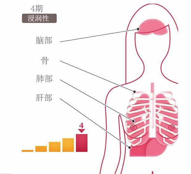 乳腺癌分期, 乳腺癌4期, 圣丹福广州现代肿瘤医院