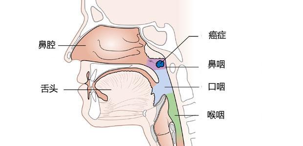 鼻咽癌, 鼻咽癌病理报告, 圣丹福广州现代肿瘤医院