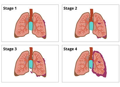 điều trị ung thư phổi, ung thư phổi giai đoạn cuối, ung thư phổi giai đoạn đầu, ung thư phổi giai đoạn 2, ung thư phổi giai đoạn 3, ung thư phổi di căn, tiên lượng sống ung thư phổi