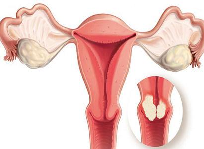 triệu chứng ung thư cổ tử cung, biểu hiện ung thư cổ tử cung, biểu hiện ung thư cổ tử cung, k cổ tử cung